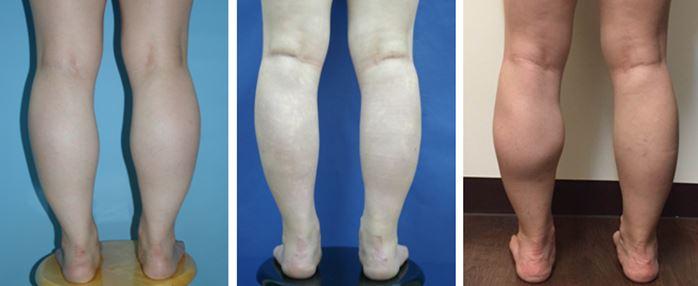 儷人整形外科診所 Lih-Ren Cosmetic Clinic